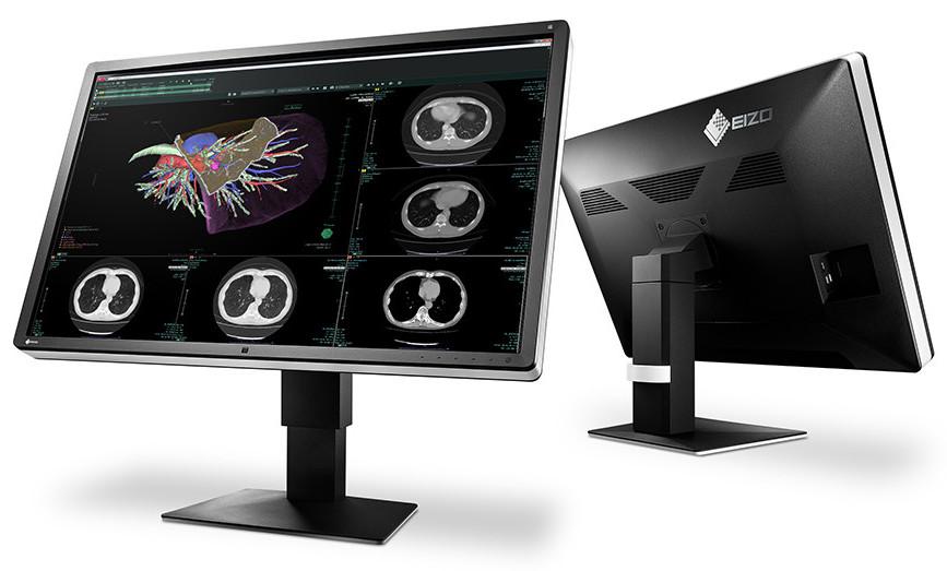 Photo of EIZO anuncia su nuevo monitor RadiForce RX660 de 30 pulgadas