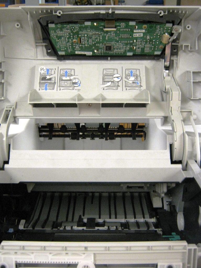 laser interior